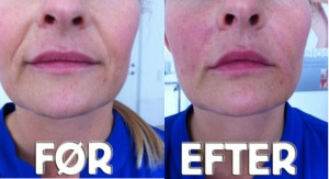 BEFORE---AFTER-MESO